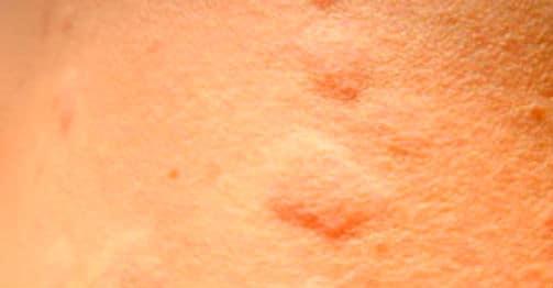 кожная болезнь 1